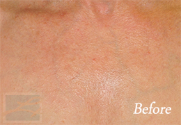 Skin Tightening New Orleans - Case 38, Before
