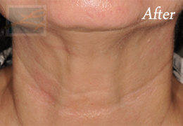 Skin Tightening New Orleans - Case 39, After