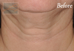 Skin Tightening New Orleans - Case 39, Before
