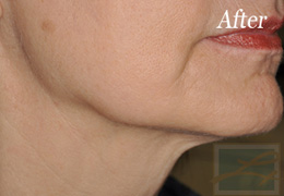 Skin Tightening New Orleans - Case 4, After