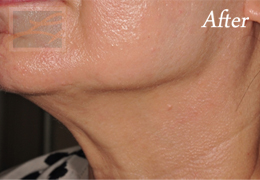 Skin Tightening New Orleans - Case 40, After