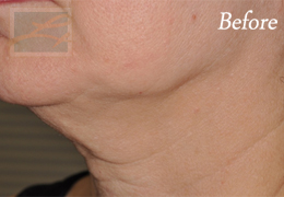 Skin Tightening New Orleans - Case 40, Before