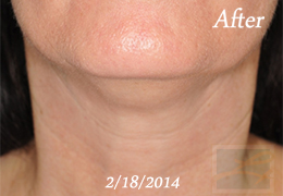 Skin Tightening New Orleans - Case 41, After