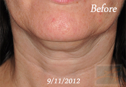 Skin Tightening New Orleans - Case 41, Before