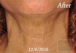 Lupo Center for Aesthetic and General Dermatology Skin Tightening Paitent After Image Case 44