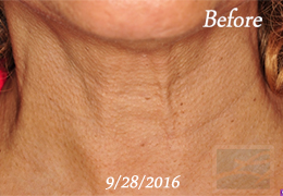 Lupo Center for Aesthetic and General Dermatology Skin Tightening Paitent Before Image Case 44