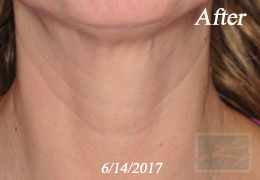 Skin Tightening New Orleans - Skin Tightening Patient Case 47, After