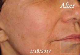 Skin Tightening New Orleans - Skin Tightening Patient Case 48, After