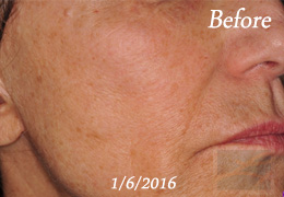 Skin Tightening New Orleans - Skin Tightening Patient Case 48, Before
