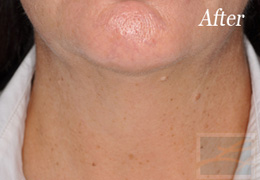 Skin Tightening New Orleans - Case 6, After