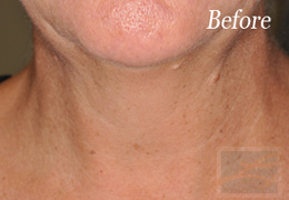 Skin Tightening New Orleans - Case 6, Before