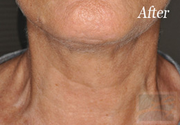 Skin Tightening New Orleans - Case 9, After
