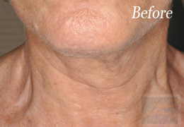 Skin Tightening New Orleans - Case 9, Before
