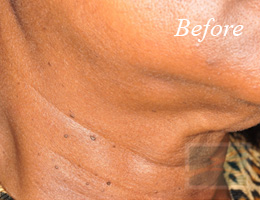 Skin Tightening New Orleans - Case 1, Before