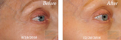 Skin tightening - Before after gallery image 37