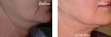 Skin tightening - Before after gallery image 14