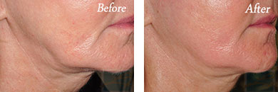 Skin tightening - Before after gallery image 15