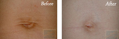 Skin tightening - Before after gallery image 16