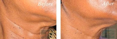 Skin tightening - Before after gallery image 17