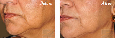 Skin tightening - Before after gallery image 19