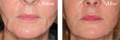 Skin tightening - Before after gallery image 20