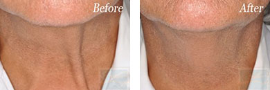 Skin tightening - Before after gallery image 21