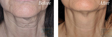 Skin tightening - Before after gallery image 22