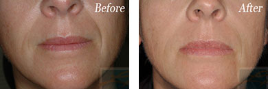 Skin tightening - Before after gallery image 23