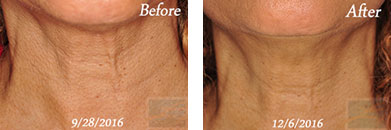 Skin tightening - Before after gallery image 6