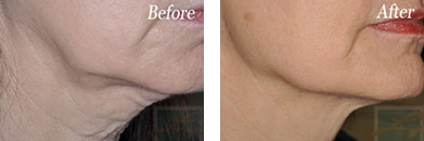 Skin tightening - Before after gallery image 24