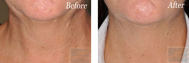 Skin tightening - Before after gallery image 25