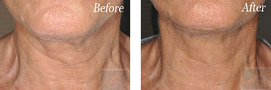 Skin tightening - Before after gallery image 26