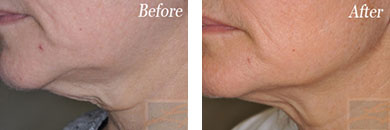 Skin tightening - Before after gallery image 27