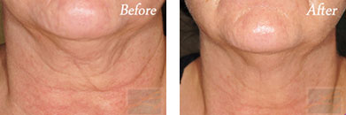 Skin tightening - Before after gallery image 28