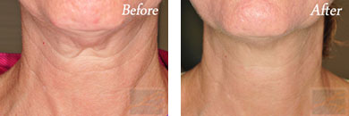 Skin tightening - Before after gallery image 29