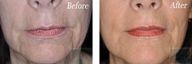 Skin tightening - Before after gallery image 31