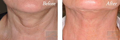 Skin tightening - Before after gallery image 32