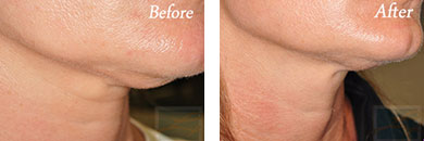 Skin tightening - Before after gallery image 33