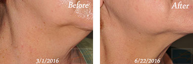 Skin tightening - Before after gallery image 7
