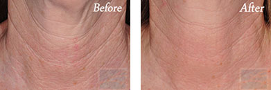 Skin tightening - Before after gallery image 34