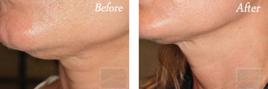 Skin tightening - Before after gallery image 35