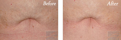 Skin tightening - Before after gallery image 36