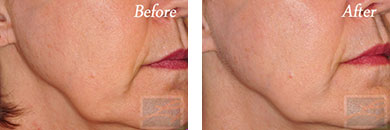 Skin Tightening - Before and After Case 12