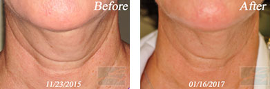 Skin tightening - Before after gallery image 4