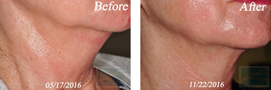 Skin tightening - Before after gallery image 3