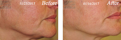 Skin tightening - Before after gallery image 2