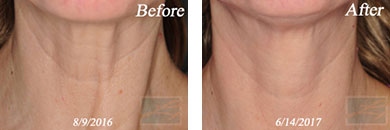 Skin tightening - Before after gallery image 1