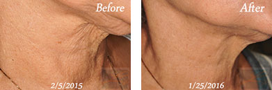 Skin tightening - Before after gallery image 8