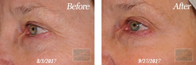 Eyes - Before and After Case 40