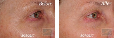 Skin tightening - Before after gallery image 41